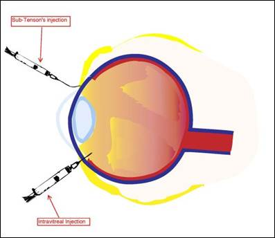 Compounding Preparations For Ophthalmic Use In Humans